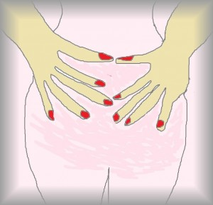 illustration of Endometriosis in woman